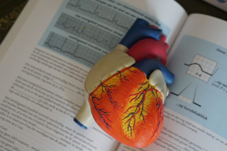 Examples of anatomical heart and EKGs in textbook